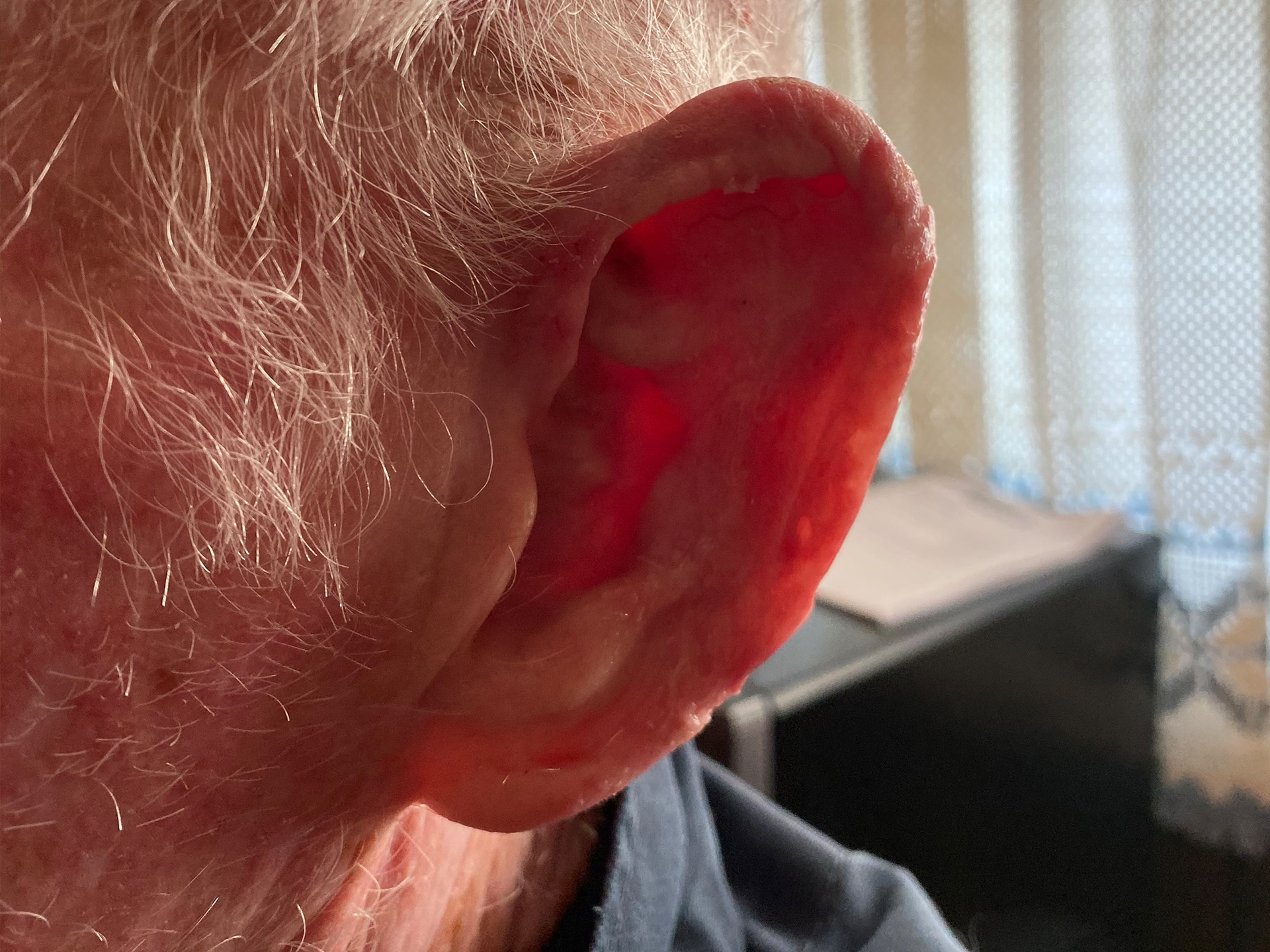 After Ear Prosthesis